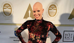 Actress Loses All Her Hair and Finds Success in Hollywood
